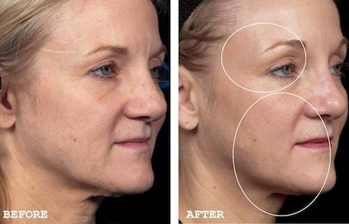 Premature Aging Archives Cutis Cosmetic Amp Laser Centre